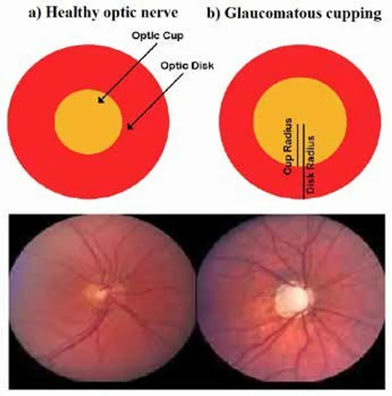 Optic Nerve Cupping: Optic Nerve Cupping
